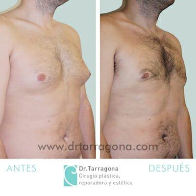 cirugía de ginecomastia realizada por el Dr. Tarragona