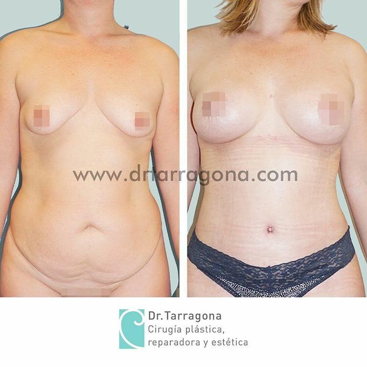 abdominoplastia y pexia mamaria vista frontal antes y después
