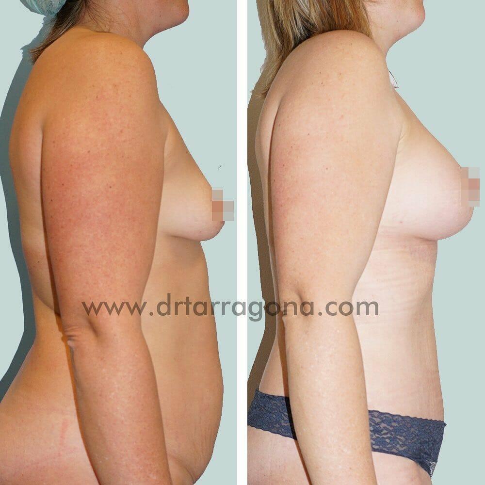 abdominoplastia y pexia mamaria vista lateral derecha antes y después