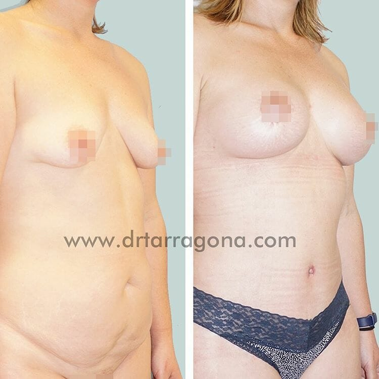 abdominoplastia y pexia mamaria vista lateral izquierda antes y después
