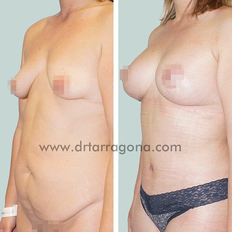 abdominoplastia y pexia mamaria vista oblicua izquierda antes y después