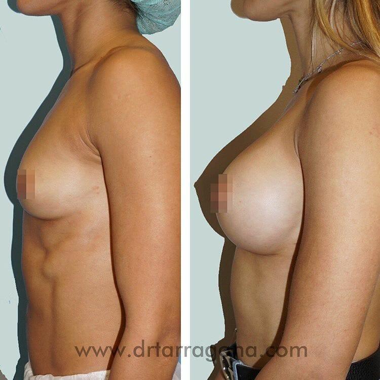 aumento de senos vista lateral izquierda antes y después