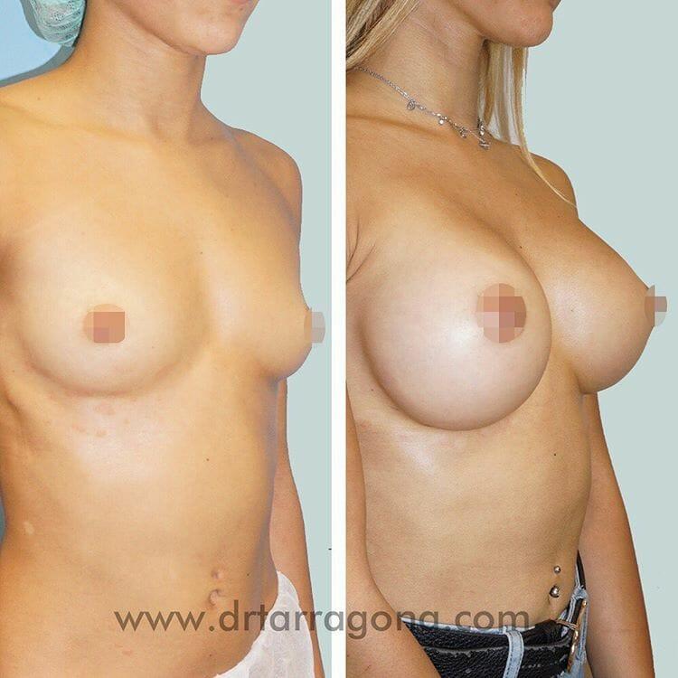 aumento de senos vista oblicua derecha antes y después