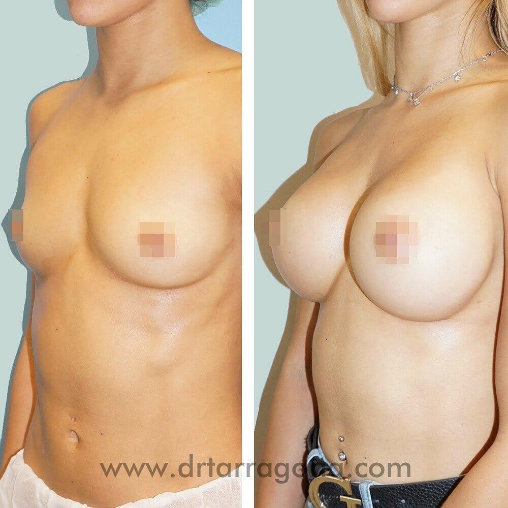 aumento de senos vista oblicua izquierda antes y después