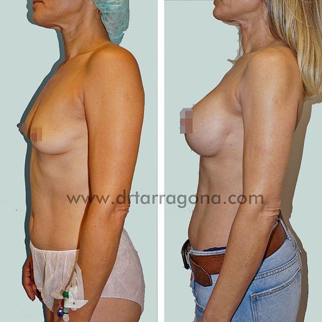 aumento de pechos vista lateral izquierda antes y después
