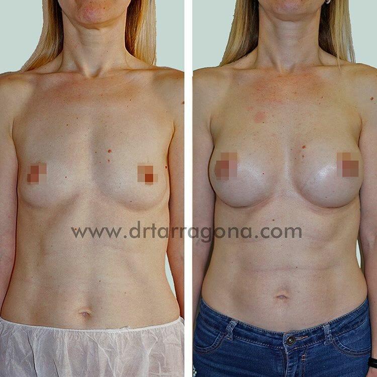 aumento de senos vista frontal antes y después