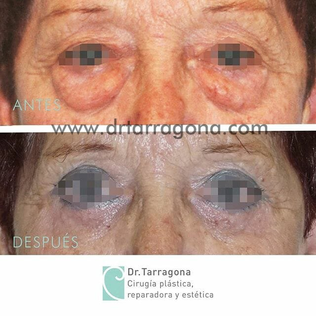 blefaroplastia frontal antes y despues