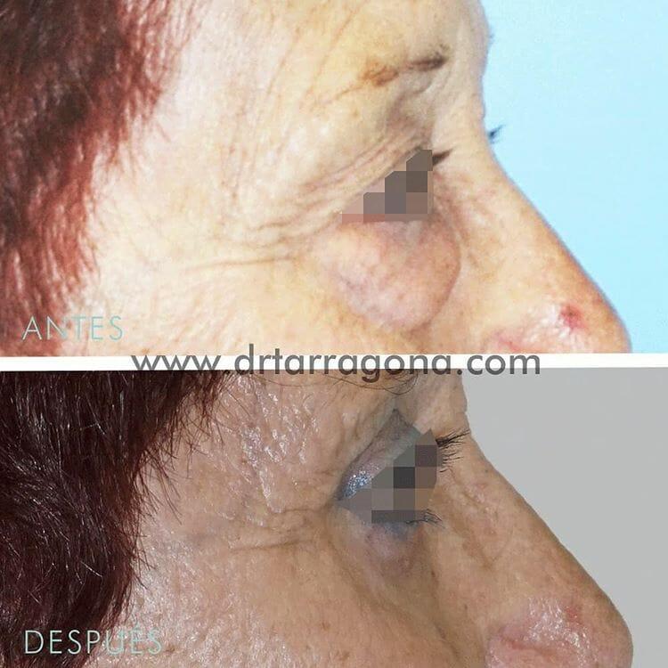 blefaroplastia parpados vista lateral derecha antes y después