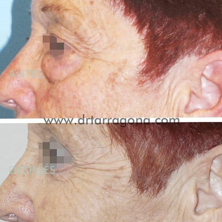 blefaroplastia parpados vista lateral izquierda antes y después