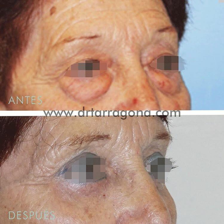 blefaroplastia parpados oblicua derecha antes y después