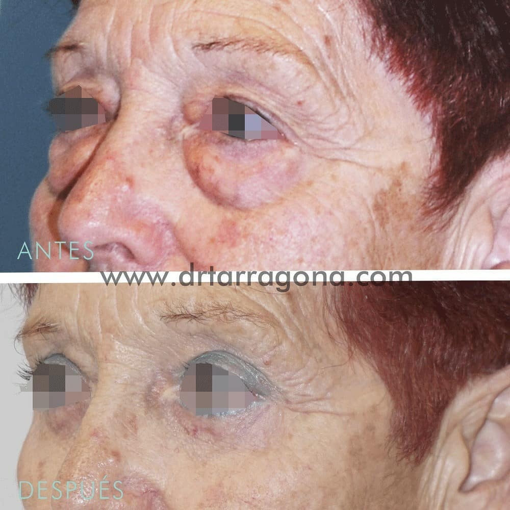 blefaroplastia parpados oblicua izquierda antes y después