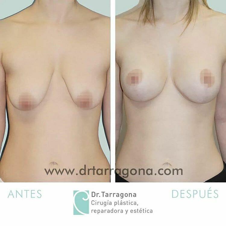 levantamiento de pechos vista frontal antes y después