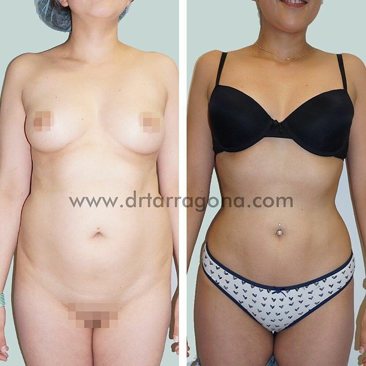 liposucción vista frontal antes y después