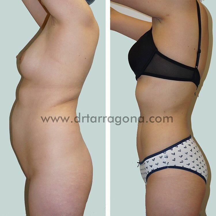 liposucción vista lateral izquierda antes y después