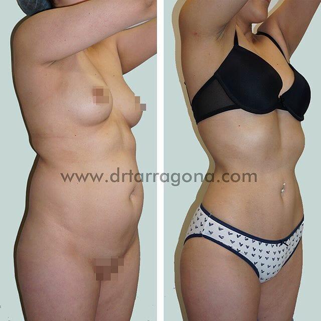 liposucción vista oblicua derecha antes y después