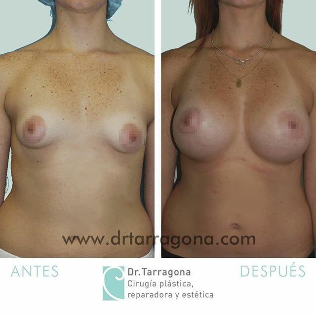 mamas tuberosas vista frontal antes y después