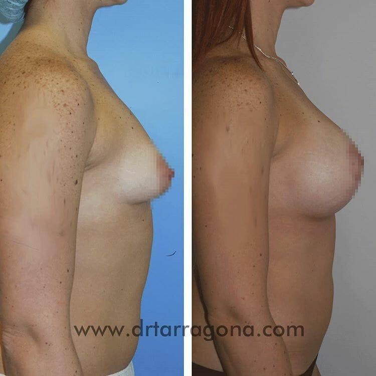 mamas tuberosas vista lateral derecha antes y después