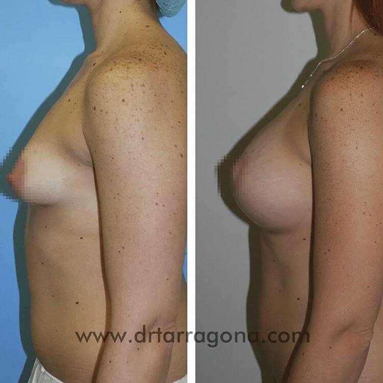 mamas tuberosas vista lateral izquierda antes y después