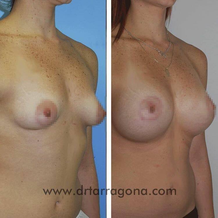 mamas tuberosas vista oblicua derecha antes y después