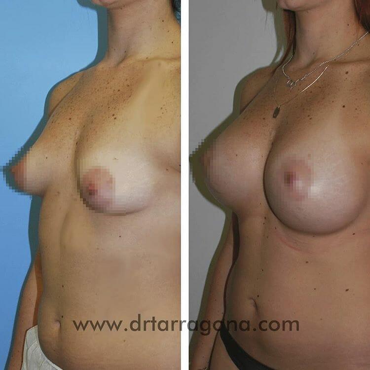 mamas tuberosas vista oblicua izquierda antes y después