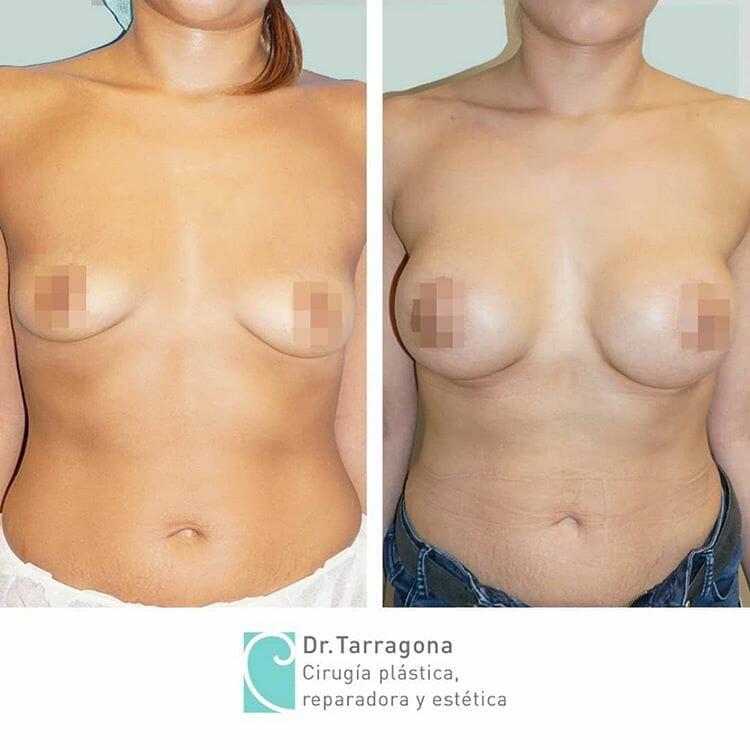 mastopexia pechos vista frontal antes y después