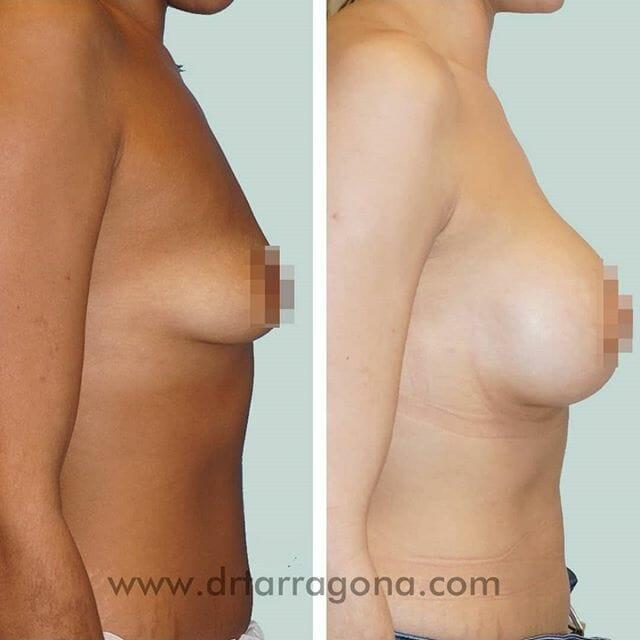 mastopexia pechos vista lateral derecha antes y después