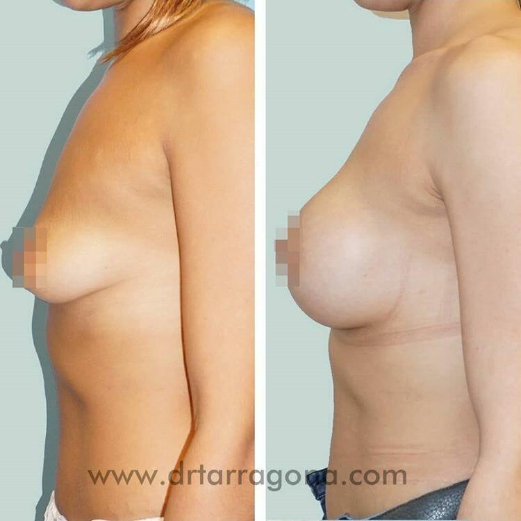 mastopexia pechos vista lateral izquierda antes y después