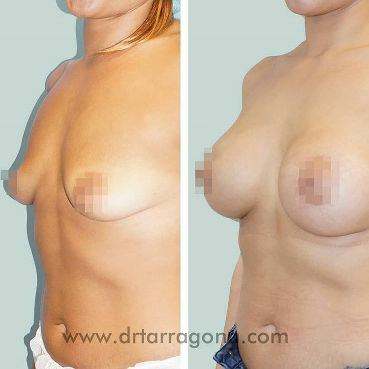 mastopexia pechos vista oblicua izquierda antes y después