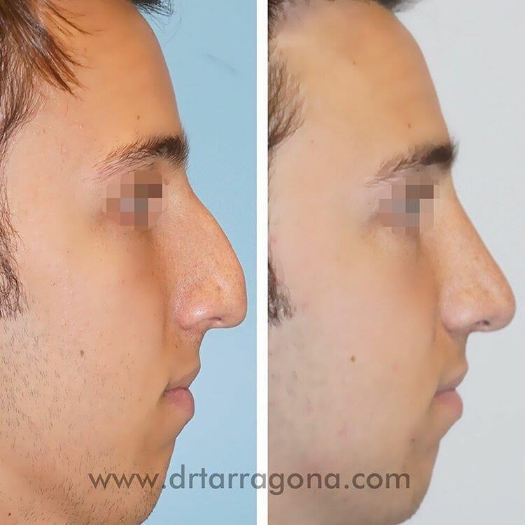 rinoplastia vista lateral derecha antes y después