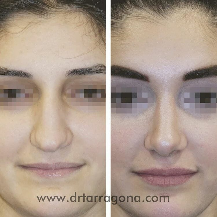 rinoplastia vista ftontal antes y después