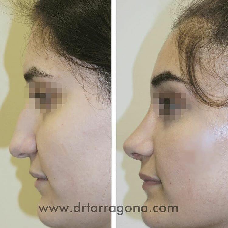 rinoplastia vista lateral izquierda antes y después