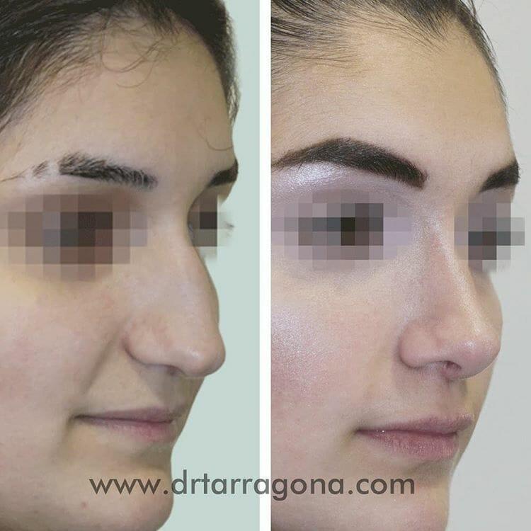 rinoplastia vista oblicua derecha antes y después