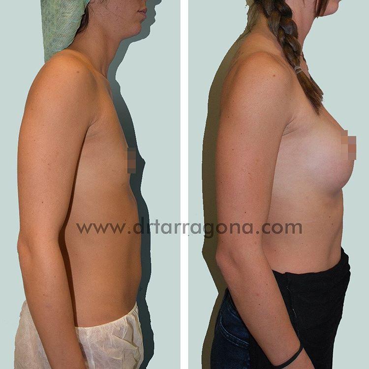 aumento de mamas vista lateral derecha antes y después