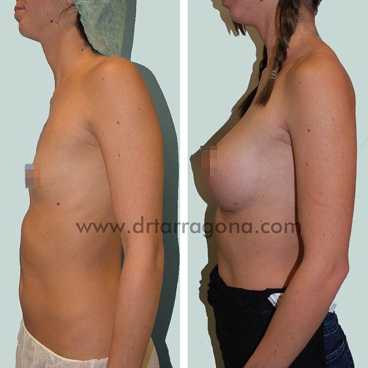 aumento de mamas vista lateral izquierda antes y después