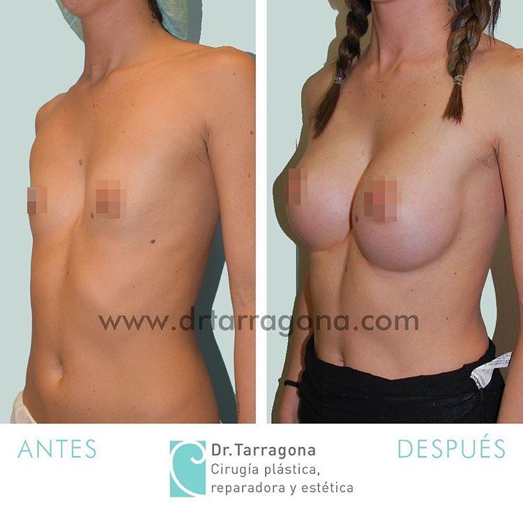 aumento de mamas vista oblicua izquierda antes y después