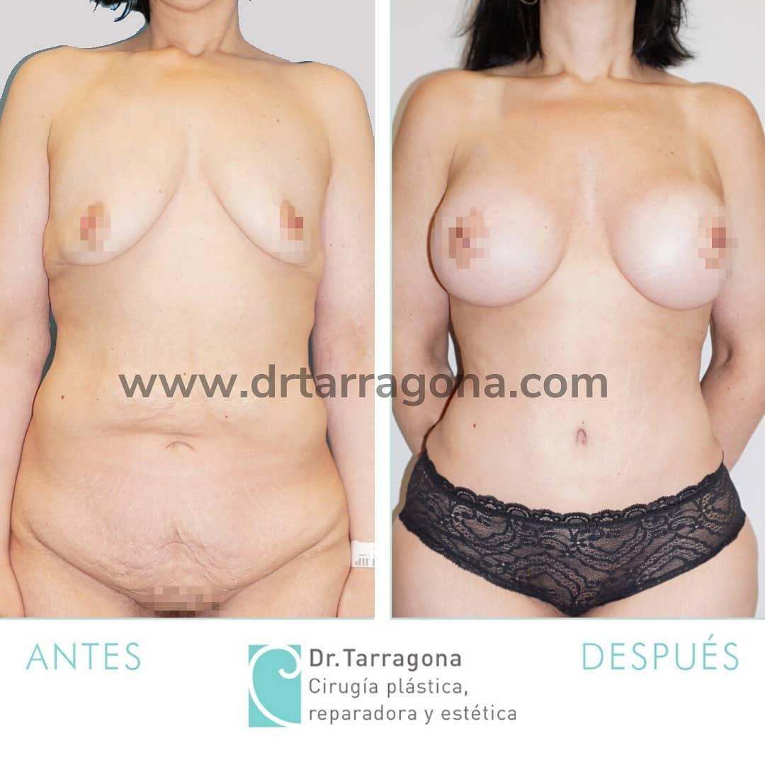 abdominoplastia frontal