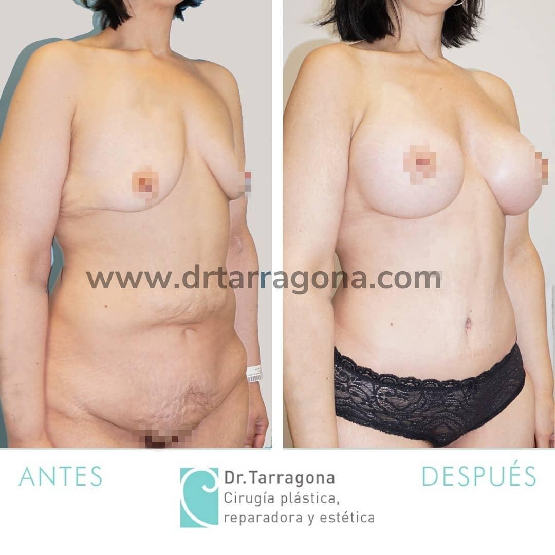 abdominoplastia oblicua derecha