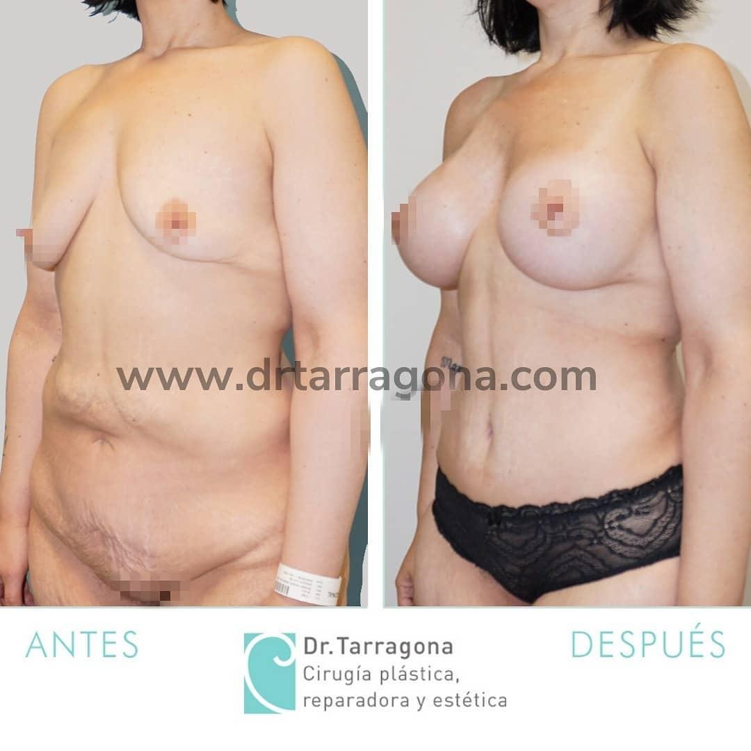 abdominoplastia oblicua izquierda