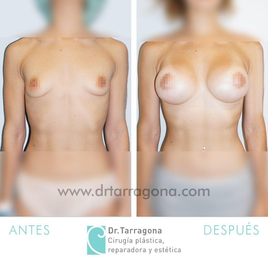 aumento de mamas frontal