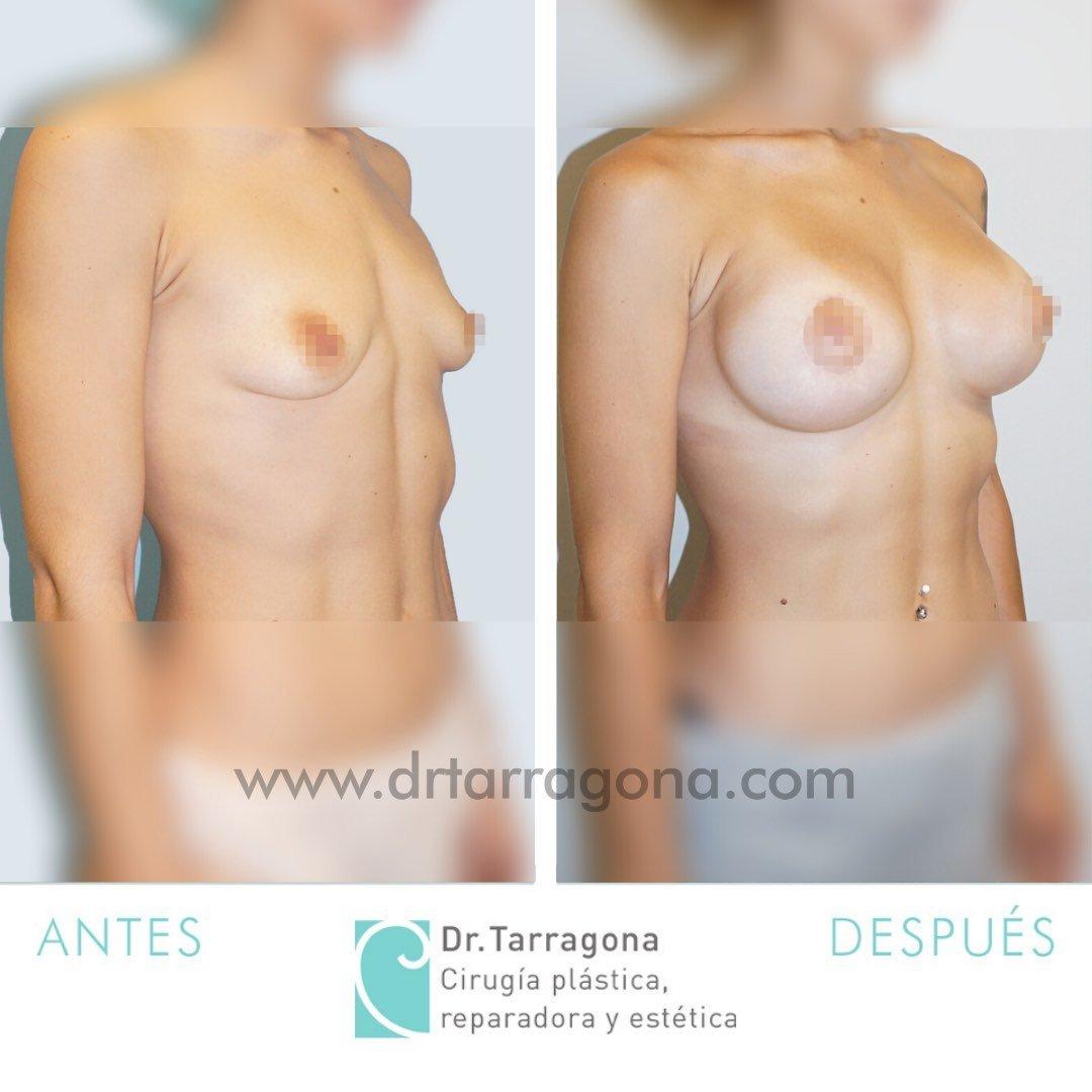 aumento de mamas oblicua derecha