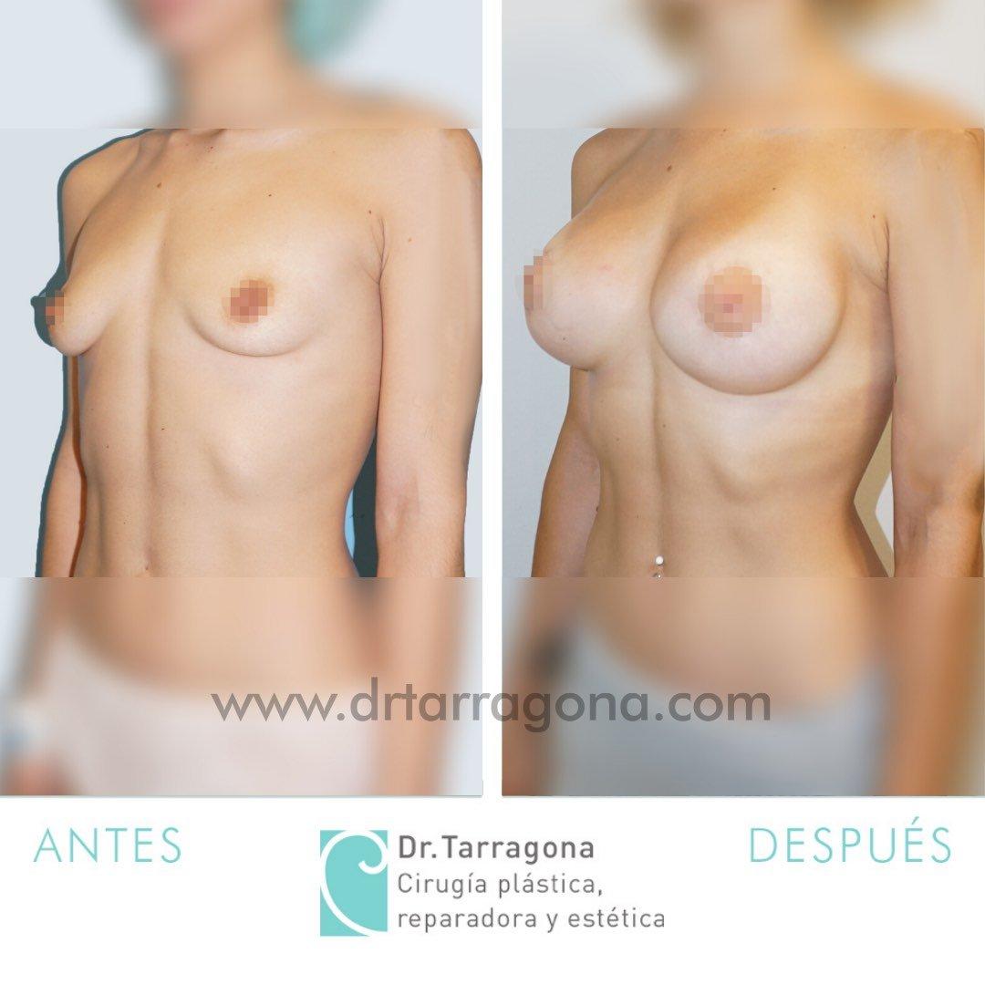 aumento de mamas oblicua izquierda