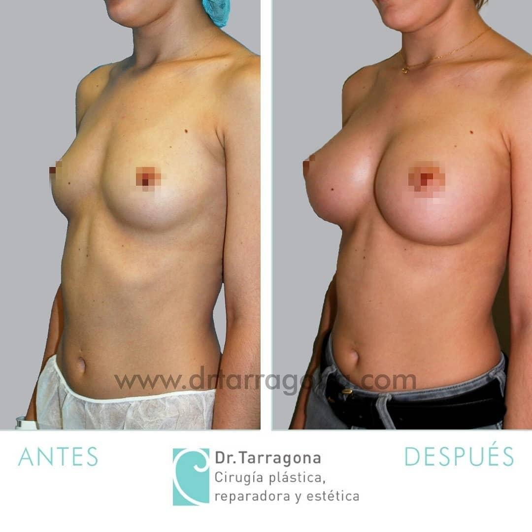 cas1 aumento de mamas oblicua izquierda