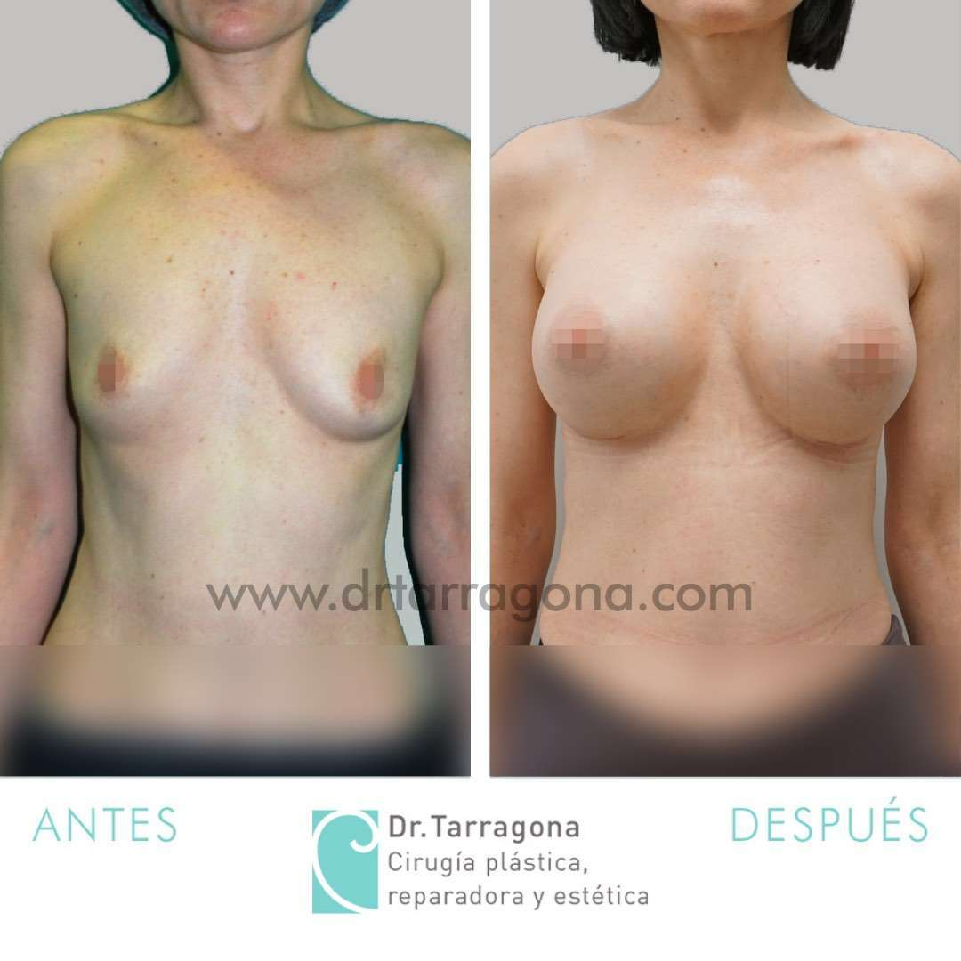 aumento-de-mamas-frontal
