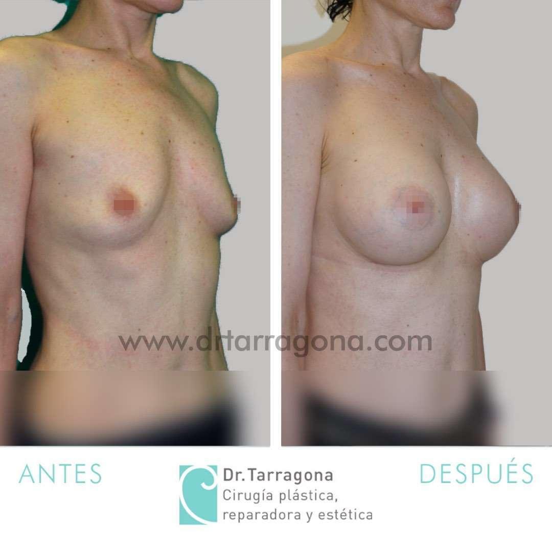 aumento-de-mamas-oblicua-derecha