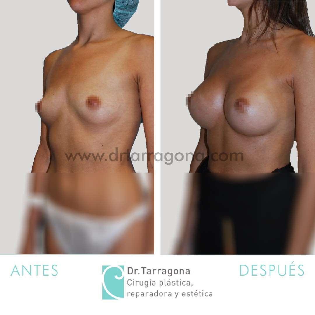 aumento-de-mamas-vista-oblicua-izquierda