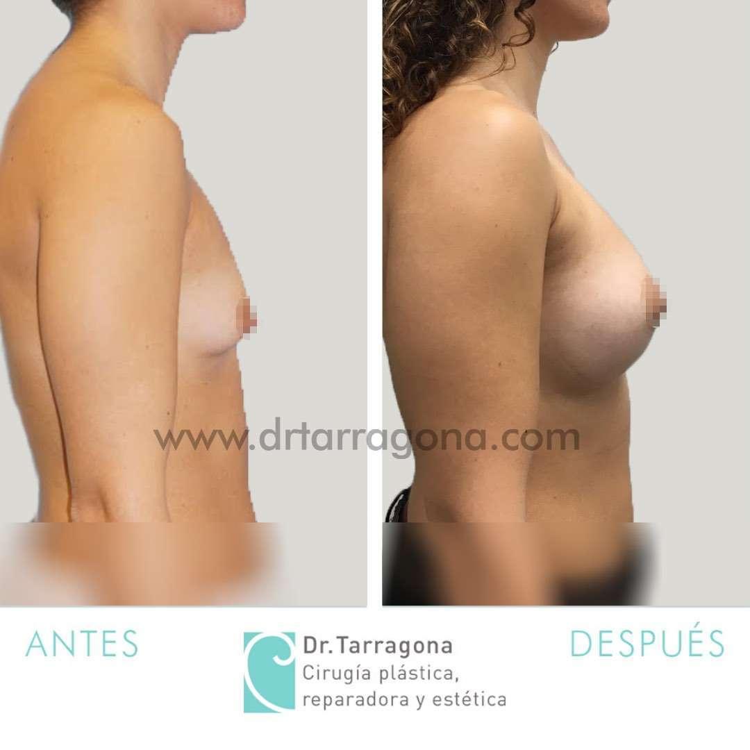 mamas-tuberosas-lateral-derecha